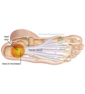 Heel Pain Orthotic